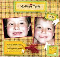 My Front tooth