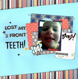 Lost My 2 Front Teeth