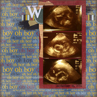 William's Ultrasound